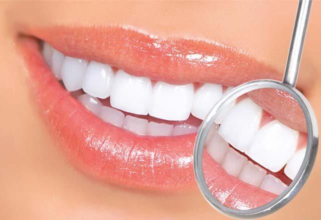 Tratament de albire dentară profesională în maxim o oră!
