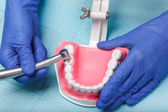 Cum poate fi salvat dintele prin tratament endodontic